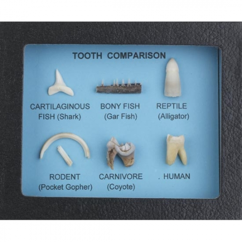 Tooth Comparison Display